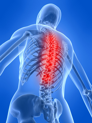 spinal cord injury osteoporosis