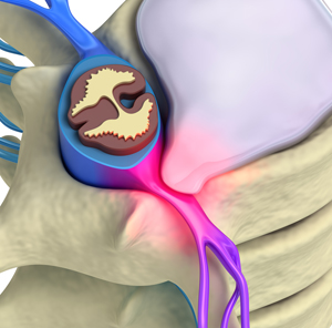 bulging disc in neck Pain from bulging disc solutions
