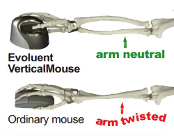 Evoluent Mouse ergonomic shape to prevent wrist and arm pain Dublin Ireland